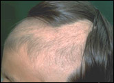 Picture of Trichotillomania hair loss disease